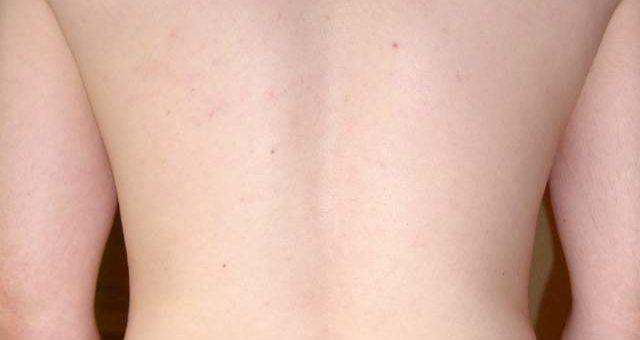 Brufoli sulla schiena rimedi naturali per eliminarli